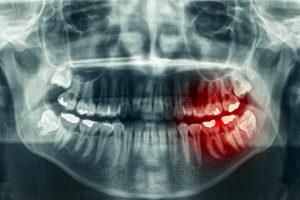 X-ray of wisdom teeth coming in.